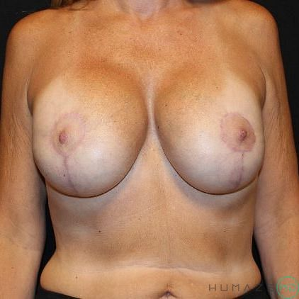 Breast Lift with Implants Before & After Image
